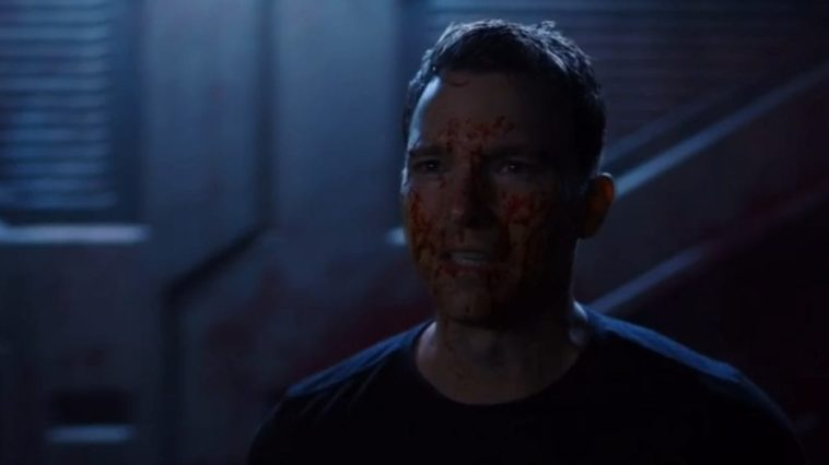 Zeller face is covered in blood