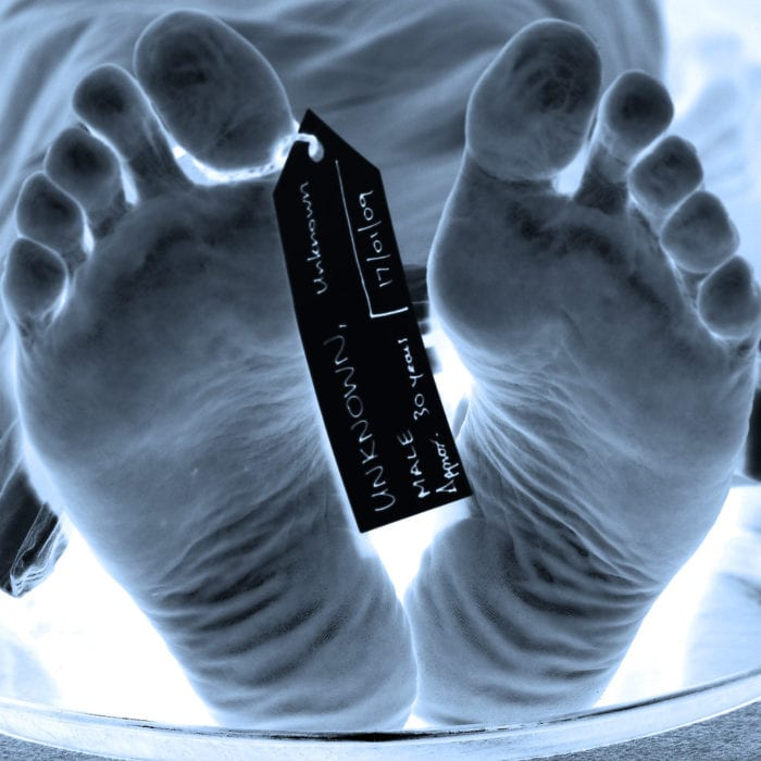 High contrast image of a body in a morgue's feet with a toe tag.
