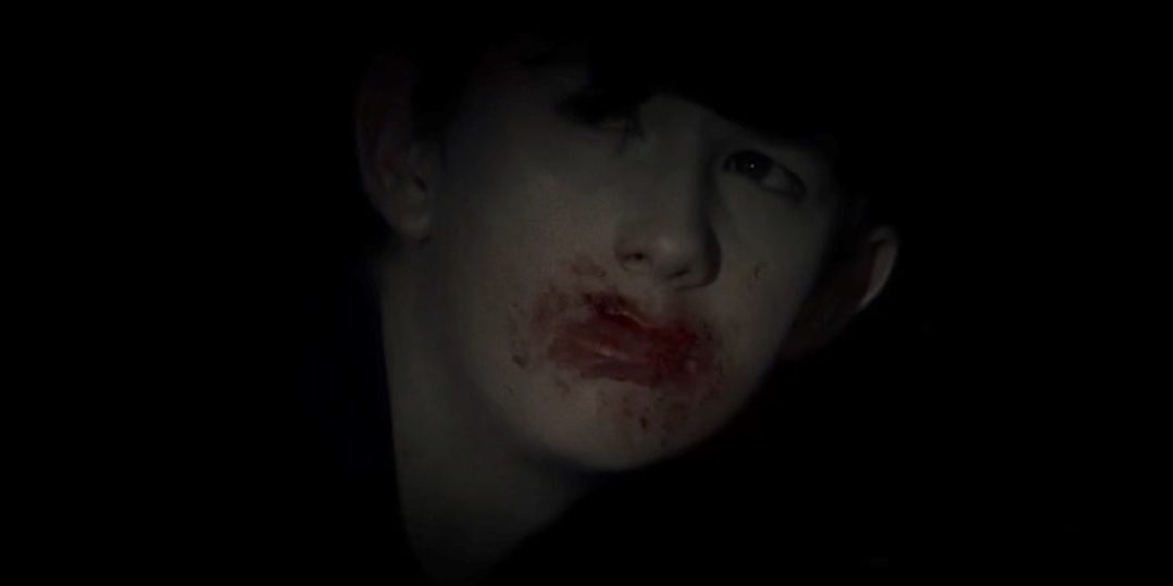 Nathan with blood on his face
